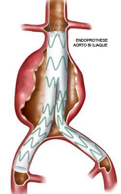 anevrisme-aorte-chirurgie-vasculaire-chirvtt-7